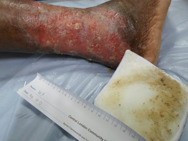 Venous leg ulcer  after Debrisoft