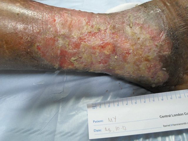 Venous leg ulcer  before Debrisoft