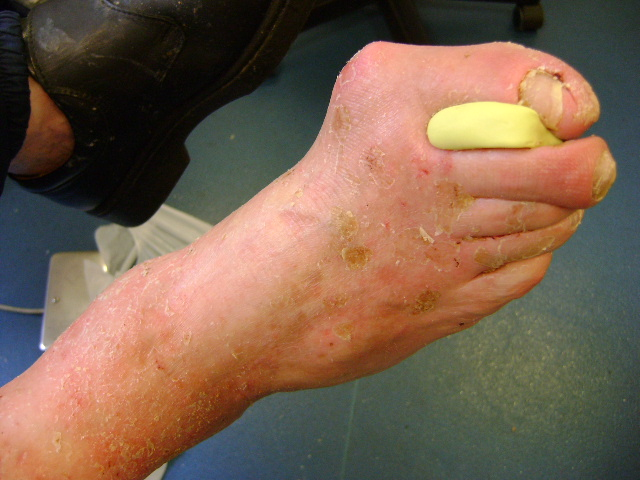 Hyperkeratosis on a diabetic foot after Debrisoft