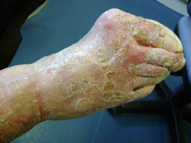Hyperkeratosis on a diabetic foot before Debrisoft