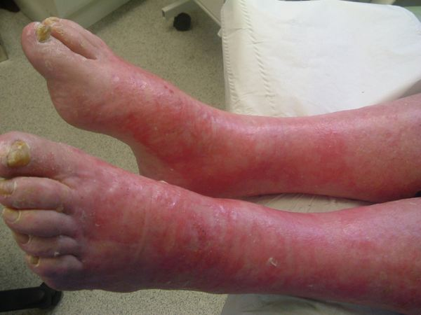 Diabetic patient with dry skin plaques and weeping legs after Debrisoft