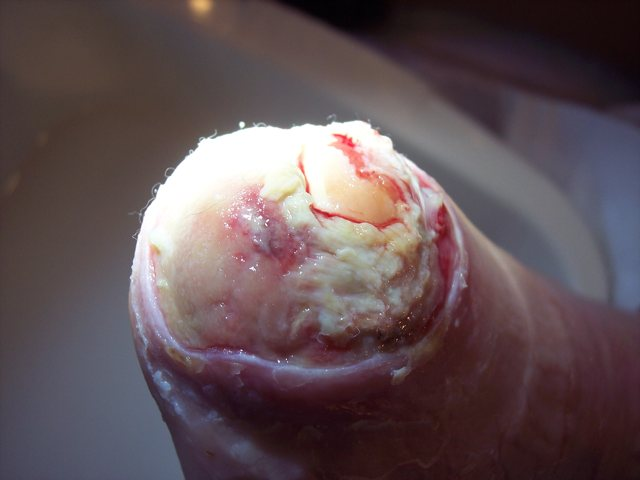 Diabetic with non healing toe wound following surgery after Debrisoft