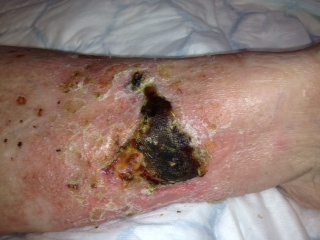 Leg ulcer of 7 months with hard eschar to wound surface before Debrisoft