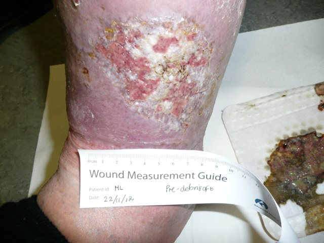 Venous leg ulcer and hyperkeratosis before Debrisoft