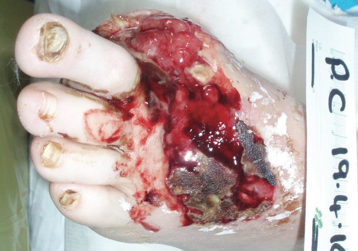 Diabetic foot post amputation before Debrisoft