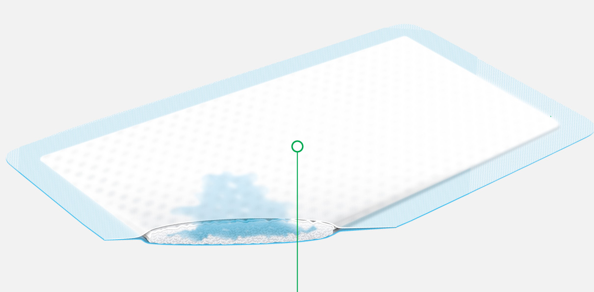 **FLIVASORB: Flexible wound contact layer**  Prevents adhesion to the wound