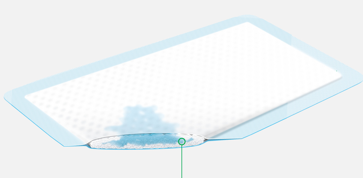 **Absorbent core with superabsorber**  Binds large amounts of wound exudate evenly in fixed superabsorber particles